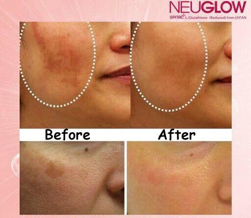 Neuglow L-Glutathione Premium White 28 Whitening effervescent tablets 1