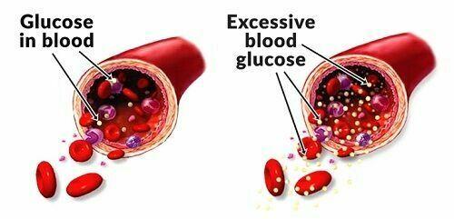 """KRUACARE"" BYE BYE Suger Help on Blood Sugar , Diabetic Supplement  60 capsuals 3"
