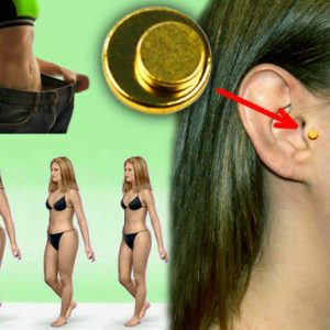 2-Magnetic Auricolar Therapy Non Diet Ear Weight Loss Without Dieting Zero Diet