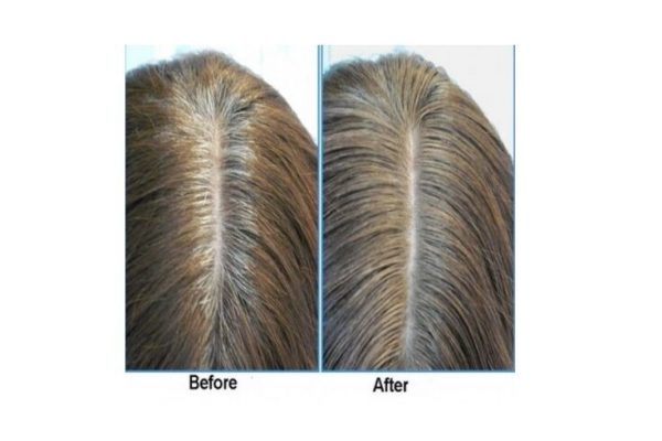 Anti Gray Hair 9000 Pure Saw Palmetto Catalase Horsetail Restores Natural Color  5