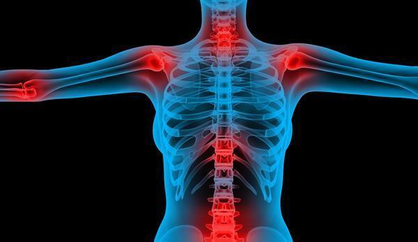 bone support - HYALURONIC ACID 100MG - MAX STRENGTH - 3B - hyaluronic acid powde 5